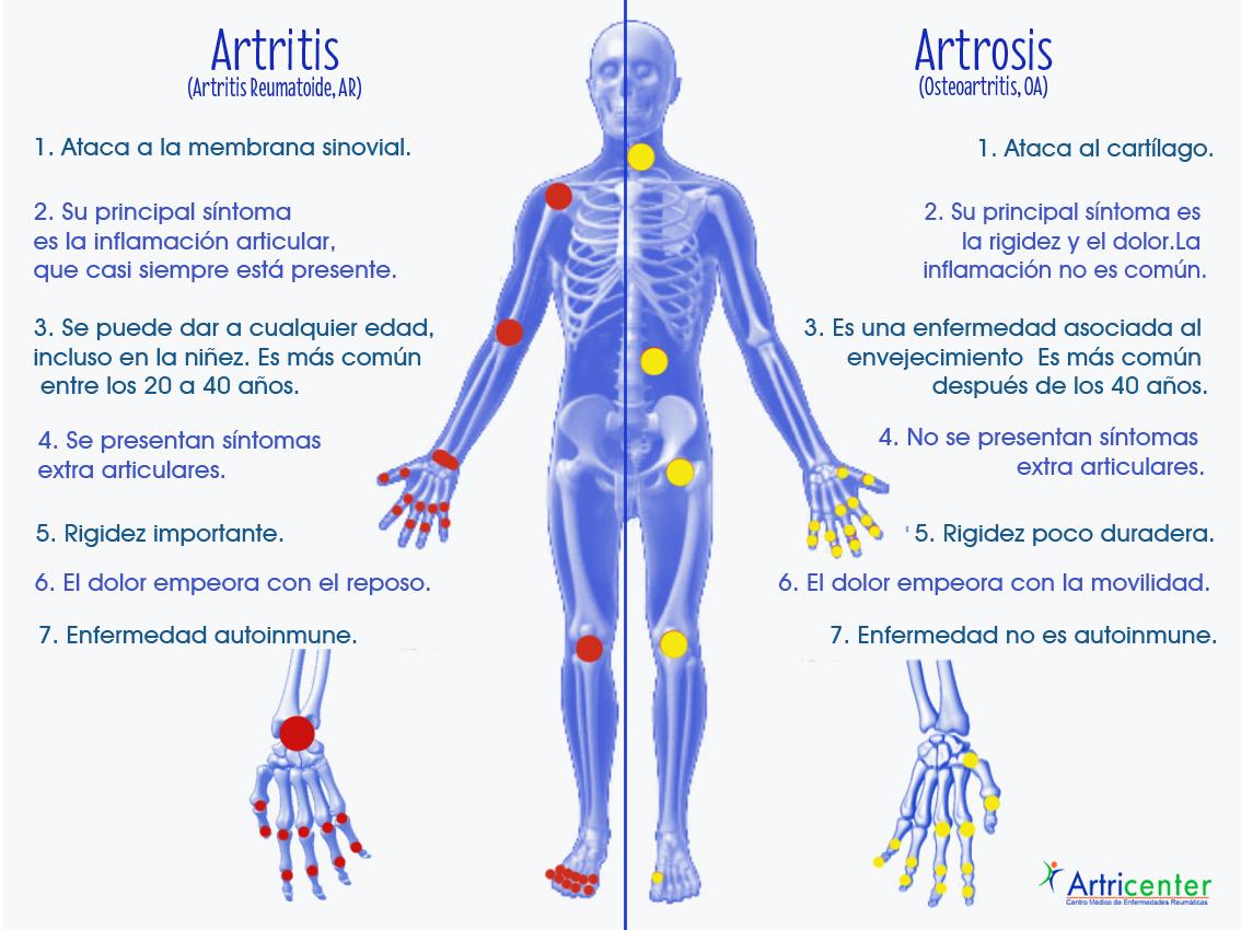 Diferencias entre artritis y artrosis artricenter for Diferencia entre yeso y escayola