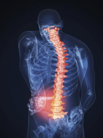 lumbalgia Artricenter dolor de espalda