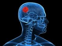 Sistema nervioso Artricenter dolor