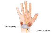 túnel carpiano artricenter dolor