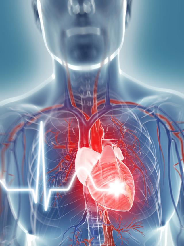 que-es-un-paro-cardiaco-o-muerte-subita