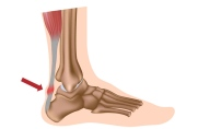 tendinitis-aquilea