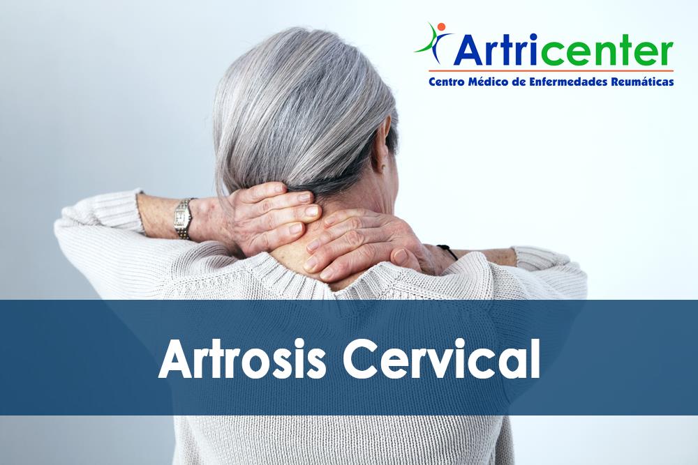 Síntomas de la Artrosis Cervical | Artricenter
