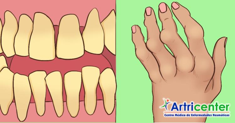 dientes-artricenter