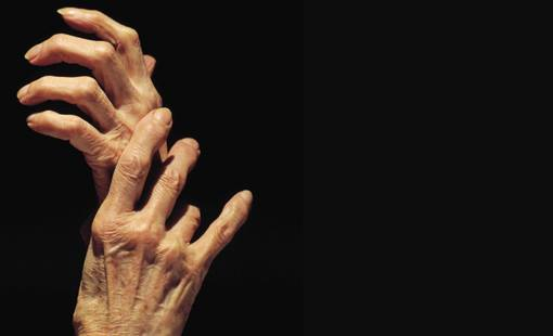 artritis-artricenter