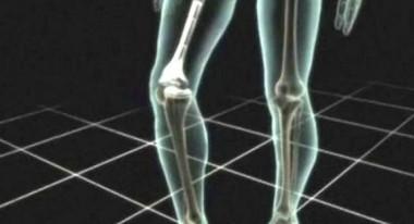 artritis reumatoide artricenter