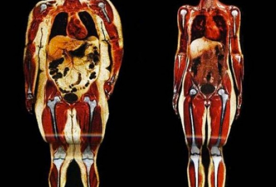 sobrepeso-artrcenter-artritis
