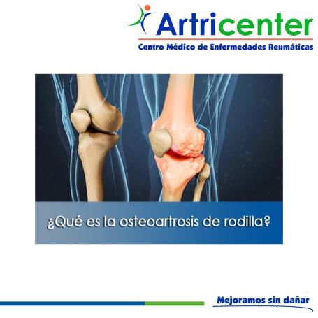 osteoartrosis de rodilla-artricenter-blog
