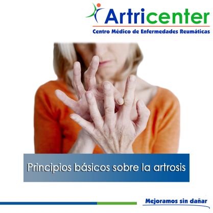 Principios sobre la artrosis-ARTRICENTER-BLOG