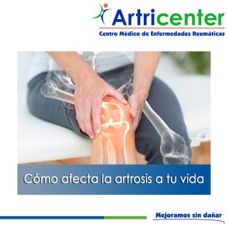 artrosis vida-ARTITIS-ARTRICENTER-BLOG