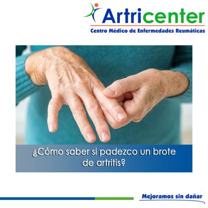 BROTE DE ARTITIS-ARTRICENTER-BLOG