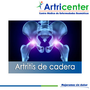 cadera-ARTITIS-ARTRICENTER-BLOG