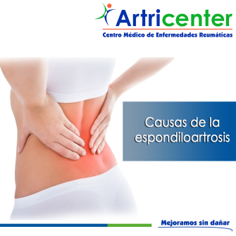 causas de la espondiloartrosis-ARTITIS-ARTRICENTER-BLOG