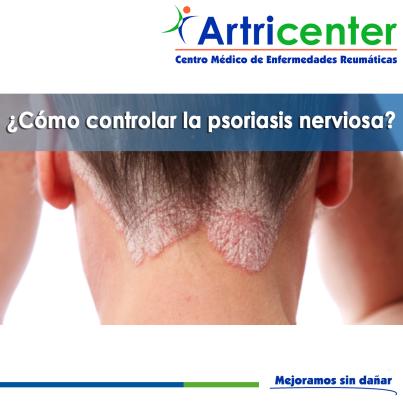 controlar la psoriasis nerviosa-ARTRICENTER-BLOG