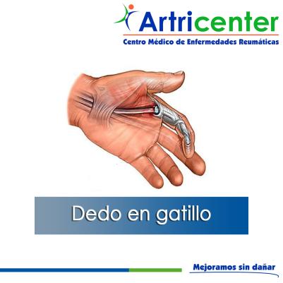 DEDO EN GATILLO-ARTITIS-ARTRICENTER-BLOG