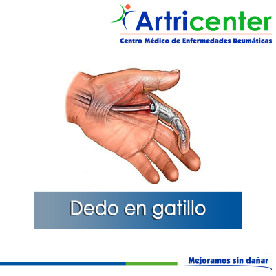 DEDO EN GATILLO-ARTITIS-ARTRICENTER-BLOG