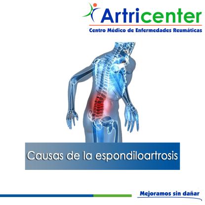 espondiloartrosis-ARTITIS-ARTRICENTER-BLOG
