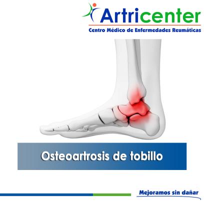 Osteoartrosis de Tobillo-ARTRICENTER-BLOG