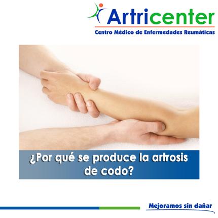 produce-ARTROSIS DE CODO-ARTITIS-ARTRICENTER-BLOG