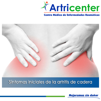 sintomas-ARTITIS-ARTRICENTER-BLOG