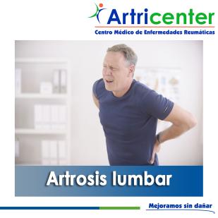ARTROSIS LUMBAR-ARTRICENTER-BLOG
