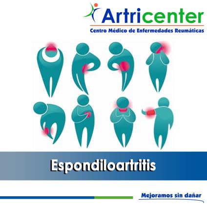 Espondiloartritis-ARTITIS-ARTRICENTER-BLOG