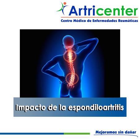 Impacto de la espondiloartritis-ARTRICENTER-BLOG