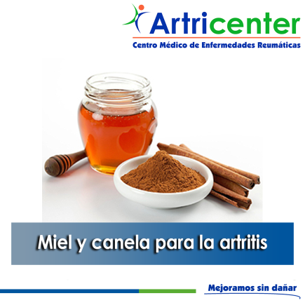 miel y canela-ARTITIS-ARTRICENTER-BLOG