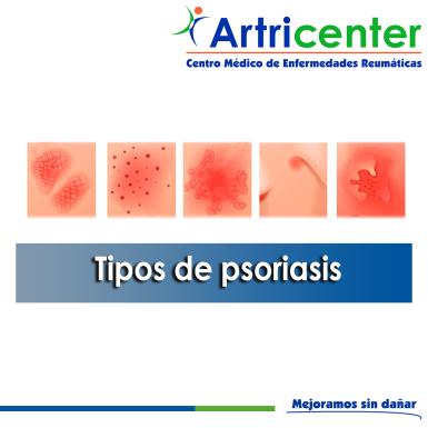 Tipos de psoriasis-ARTITIS-ARTRICENTER-BLOG