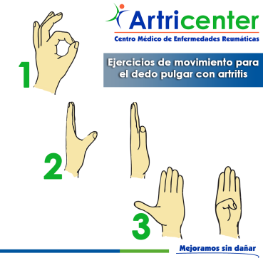 dedo pulgar-ARTITIS-ARTRICENTER-BLOG
