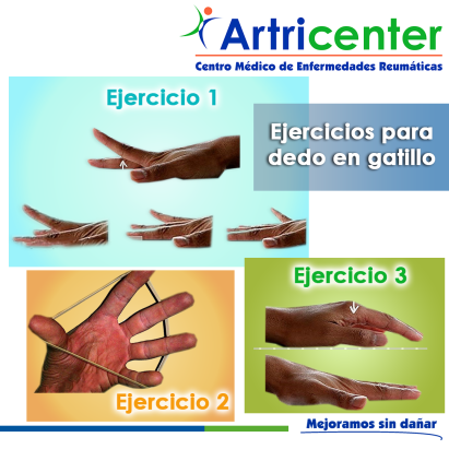 ejercicio dedo gatillARTITIS-ARTRICENTER-BLOG
