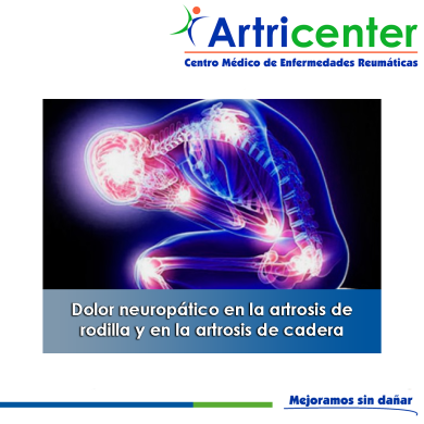 NEUROPATICA-ARTITIS-ARTRICENTER-BLOG