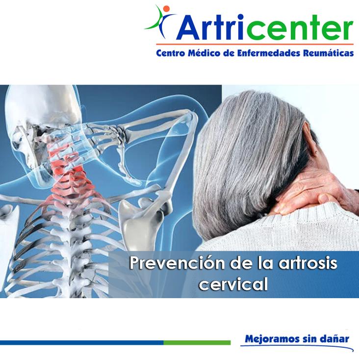 prevención artrosis-ARTRICENTER-BLOG.png
