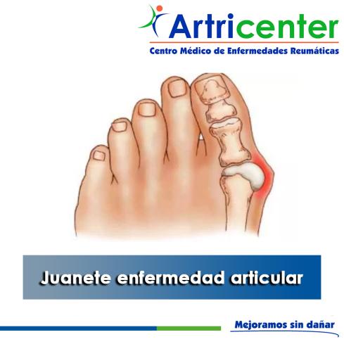 artricenter-juanete-artritis-blog