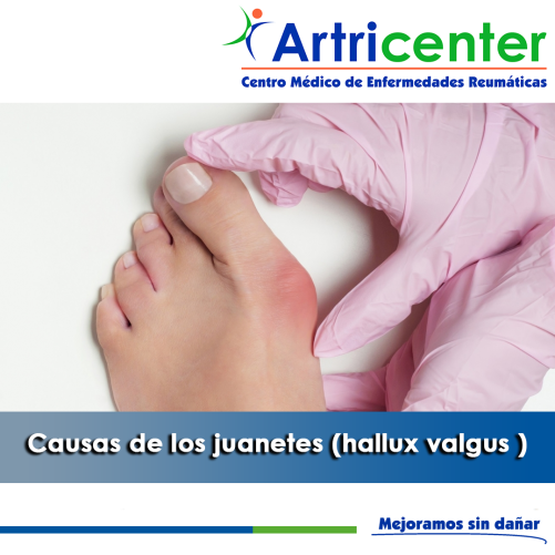 artricenter-juanete causas-artritis-blog