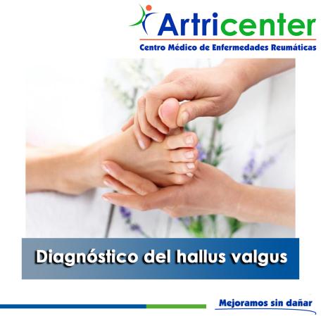 artricenter-juanete diagnónstico-artritis-blog.png