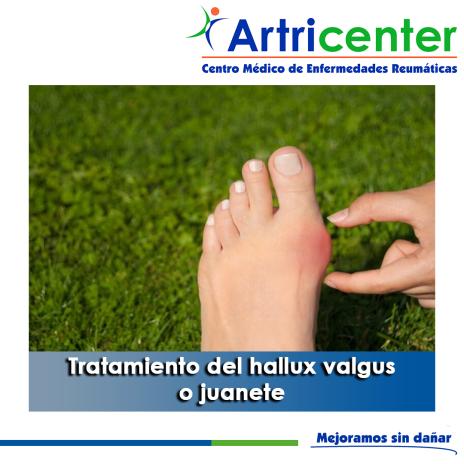 artricenter-juanete tratamiento-artritis-blog.png