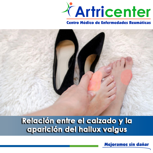 artricenter-juanetes y calzado-artritis-blog.png