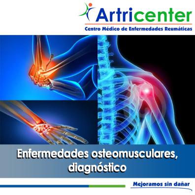 OSTEOMUSCULAR-ARTRICENTER-BLOG