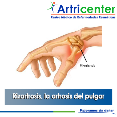 Rizartrosis-ARTRICENTER-BLOG