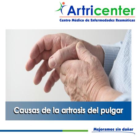Rizartrosis causas-ARTRICENTER-BLOG