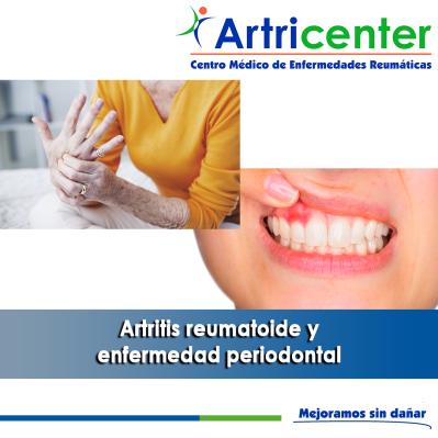 Artritis reumatoide y enfermedad periodontal-artricenter