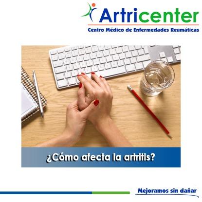 Cómo afecta la artritis-artricenter
