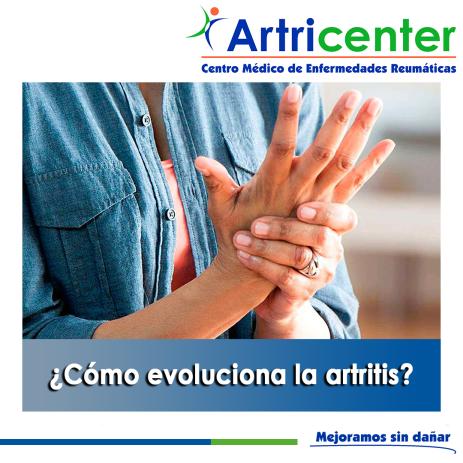 Cómo evoluciona la artritis-artricenter