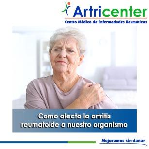 Como afecta la artritis reumatoide a nuestro organismo-artritis