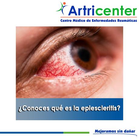 Conoces qué es la epiescleritis-artricenter