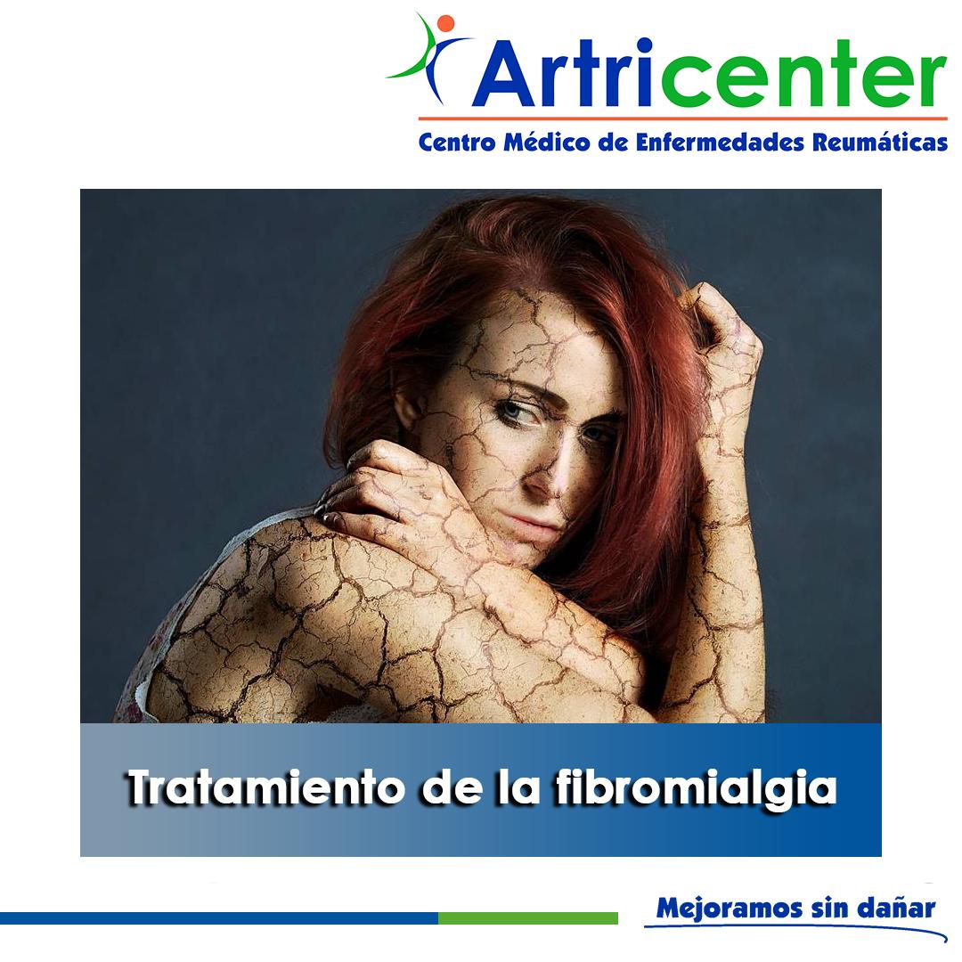 Tratamiento de la fibromialgia-artricenter