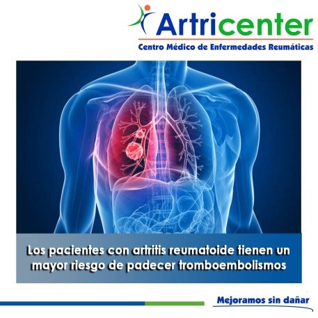 tromboembolismos-artricenter