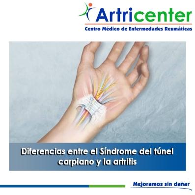 Diferencias entre el Síndrome del túnel carpiano y la artritis - artricenter