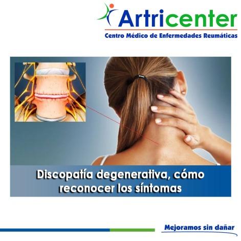 Discopatía degenerativa, cómo reconocer los síntomas-artricenter